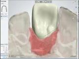 Этап проектирования индивидуальных абатментов и конструкций на винтовой фиксации при помощи программы Dental System Premium 2013